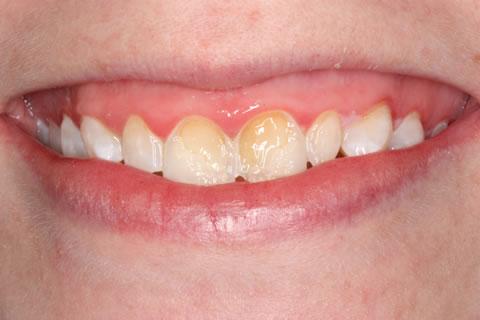 Emax Porcelain Veneers Before After - Discoloured upper teeth