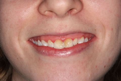 Emax Porcelain Veneers Before After - Front discoloured upper teeth