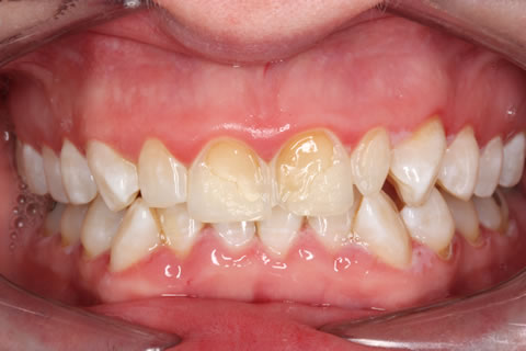 Emax Porcelain Veneers Before After - Full upper/lower arch discoloured teeth