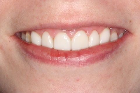 Emax Porcelain Veneers Before After - Front Emax veneer upper teeth