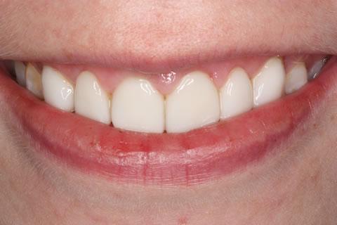 Emax Porcelain Veneers Before After - Front Emax veneer upper teeth