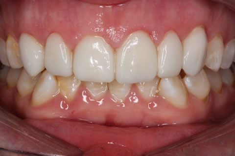 Emax Porcelain Veneers Before After - Full arch Emax veneer upper teeth