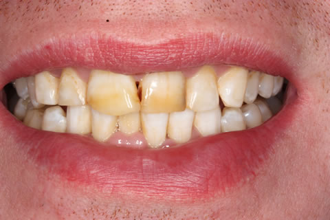Emax Porcelain Veneers Before After - Discoloured upper/lower teeth