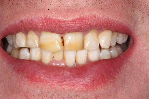 Emax Porcelain Veneers Before After - Discoloured upper/lower teeth