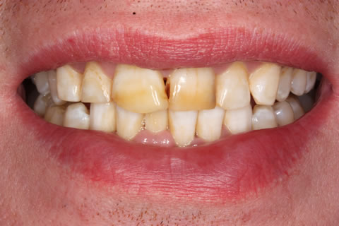 Emax Porcelain Veneers Before After - Discoloured top/bottom teeth