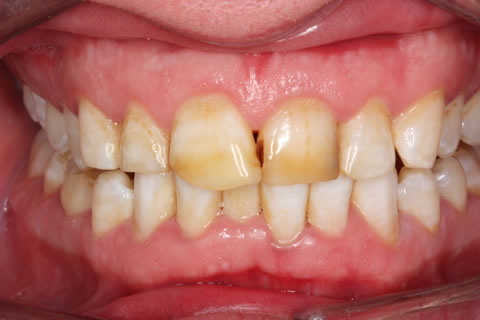 Emax Porcelain Veneers Before After - Full arch discoloured top/bottom teeth