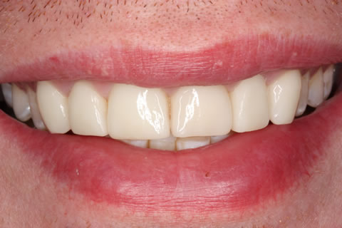 Emax Porcelain Veneers Before After - Front teeth Emax veneers