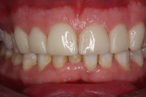 Emax Porcelain Veneers Before After - Full arch upper/lower teeth Emax veneers