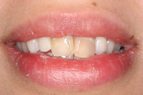 Emax Porcelain Veneers Before After - Discoloured two upper teeth