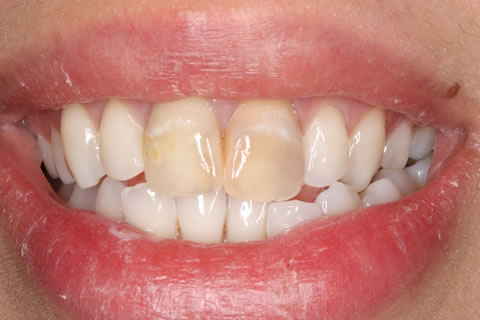 Emax Porcelain Veneers Before After - Discoloured two top teeth