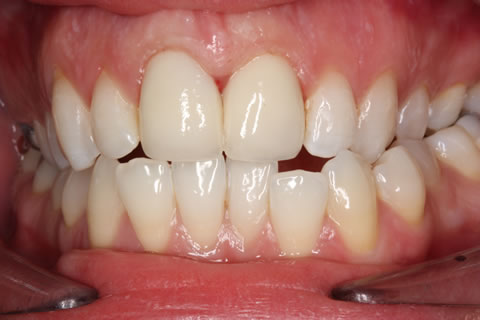 Emax Porcelain Veneers Before After - Full arch front teeth Emax veneers