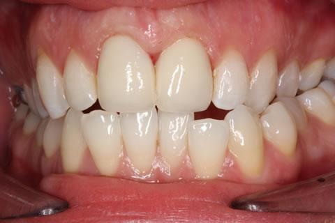 Emax Porcelain Veneers Before After - Full arch front teeth Emax veneers