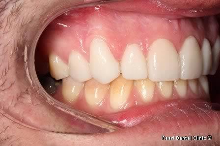 Emax Porcelain Veneers Before After - Right full upper/lower arch teeth Emax veneers