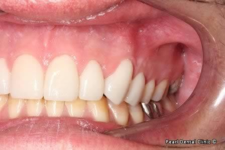 Emax Porcelain Veneers Before After - Left full upper/lower arch teeth Emax veneers