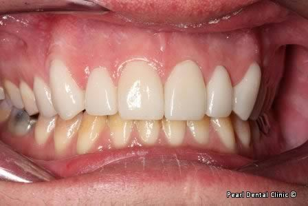 Emax Porcelain Veneers Before After - Full upper/lower arch teeth Emax veneers