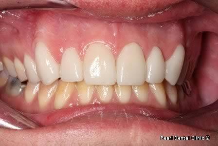 Emax Porcelain Veneers Before After - Full upper/lower arch teeth Emax veneers