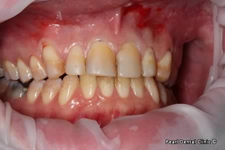 Emax Porcelain Veneers Before After - Full arch discoloured teeth