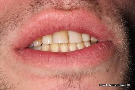 Emax Porcelain Veneers Before After - Front discoloured teeth