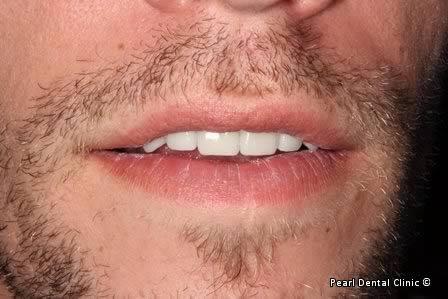 Emax Porcelain Veneers Before After - Front teeth Emax veneers