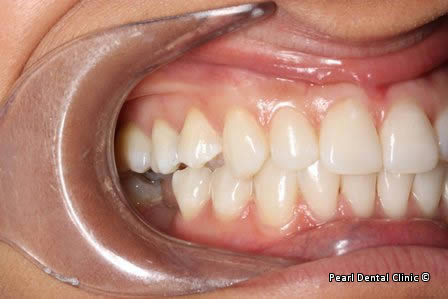Emax Porcelain Veneers Before After - Right full upper/lower arch discoloured teeth