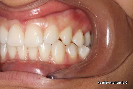 Emax Porcelain Veneers Before After - Left full upper/lower arch discoloured teeth