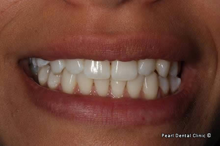 Emax Porcelain Veneers Before After - Upper/lower discoloured teeth