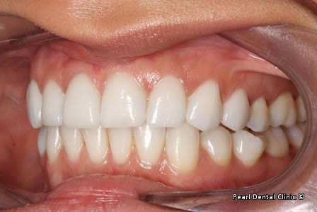Emax Porcelain Veneers Before After - Left full upper/lower arch teeth
