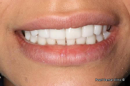Emax Porcelain Veneers Before After - Front upper/lower teeth