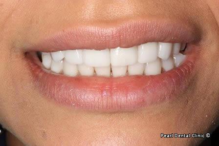 Emax Porcelain Veneers Before After - Front upper/lower teeth