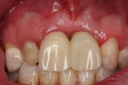 Frenectomy Before After- Frenum extending to upper middle crown margins