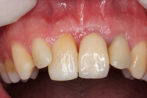 Before After Cosmetic Implant - Crown in place