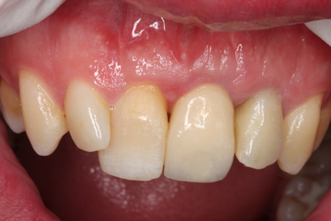 Before After Cosmetic Implant - Temporary implant for two/ four weeks