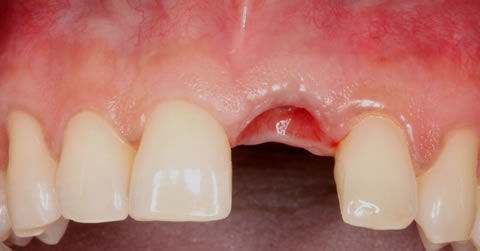Before After Anterior Implant Crown - Extracted upper tooth