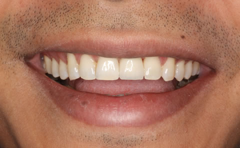 Before After Anterior Implant Crown - Implant perfect position