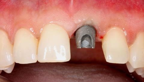 Before After Anterior Implant Crown - Titanium implant