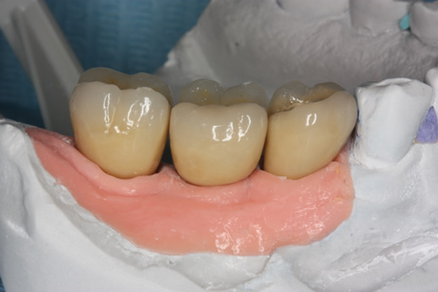 Before After Missing Back Teeth - Planning model final crowns