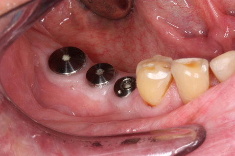 Before After Missing Back Teeth - Straumann implant placed