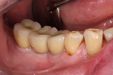 Before After Missing Back Teeth - Implant crowns attached