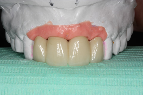 Before After Implant Bridge - Four unit bridge