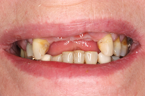 Before After Implant Bridge - Missing upper teeth