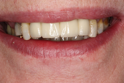 Before After Implant Bridge - Full smile
