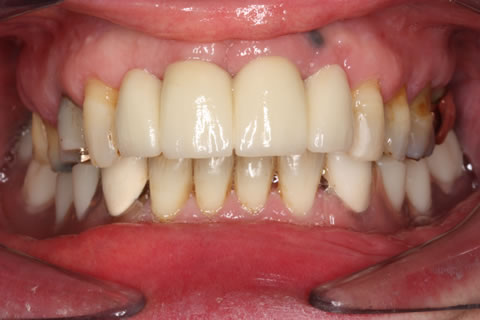 Before After Implant Bridge - Loaded two implant four unit bridge