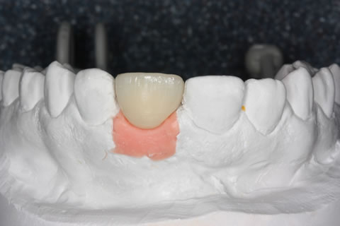 Before After Lost Front Tooth - Upper front temporary crown