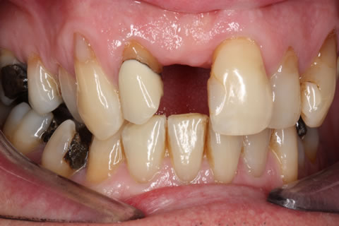 Before After Front Tooth Implant - Upper missing tooth