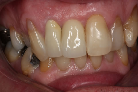 Before After Front Tooth Implant - Crown in position