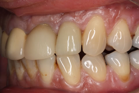 Before After Missing Front Tooth - Implant restored crown