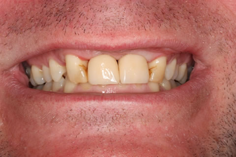 Before After Missing Front Teeth - Attached crowns