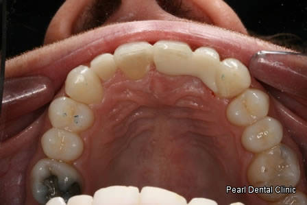 Invisalign Before After - Upper arch teeth