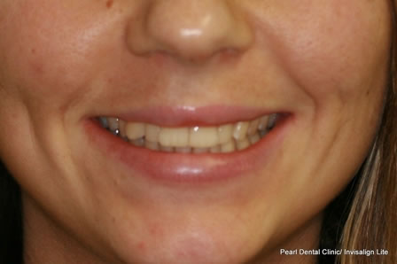 Invisalign Before After - Full smile