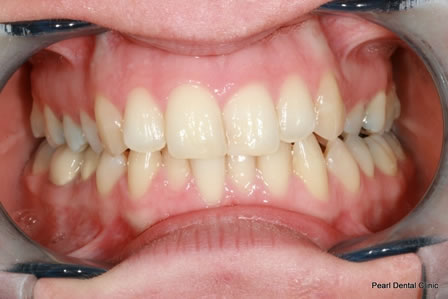 Invisalign Before After - Full upper/lower arch teeth